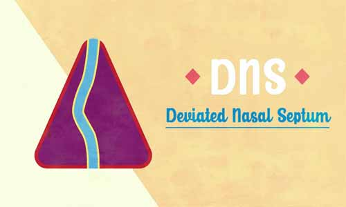 Deviated nasal septum (DNS)- Standard Treatment Guideline By Government of India