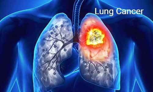 Study finds how nicotine promotes spread of lung cancer to brain