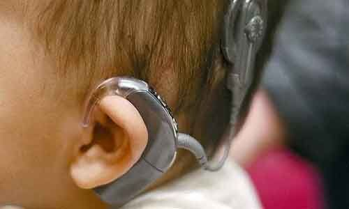 Benefits of early cochlear implantation in children outweigh risks: JAMA