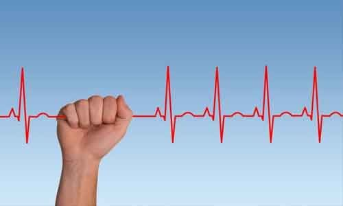 3D ECG may help detect Paroxysmal Atrial Fibrillation, finds study