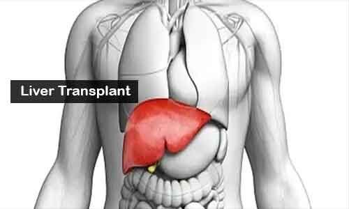 Indian surgeons conduct Liver transplant in hepatoblastoma patient during COVID lockdown