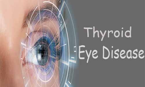US FDA approves Tepezza- first treatment for thyroid eye disease
