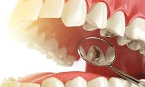 Tooth loss associated with increased cognitive impairment and dementia: Study