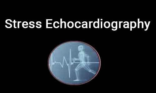 Stress echocardiography- ASE guidelines