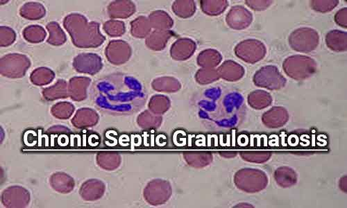 Gene therapy found successful in chronic septic granulomatosis