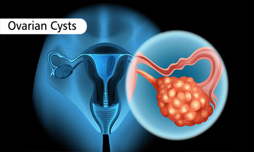 New MRI tool may help diagnose difficult cases of ovarian cancer