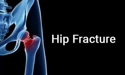 Study links Tramadol use to increased Hip fracture risk