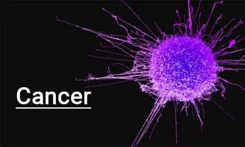 Experimental drug Quisinostat  may help prevent cancer relapse