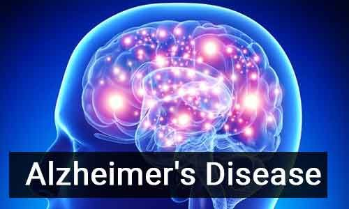 Asthma drug salbutamol may be potential treatment of Alzheimer