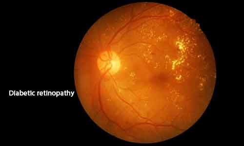 Researchers identify potential treatment for early diabetic retinopathy
