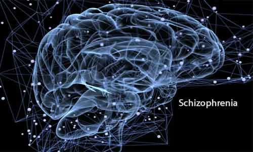 New analysis method of functional MRI may improve schizophrenia treatment