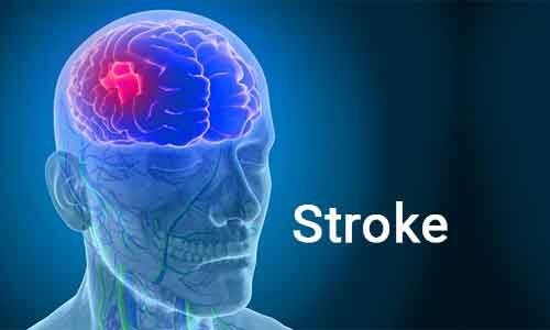 Prehospital treatment in mobile units decreases disability in stroke patients