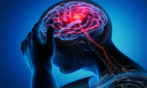 Exercise reduces stroke risk by mitigating detrimental effects of - 500x300 124512 stroke