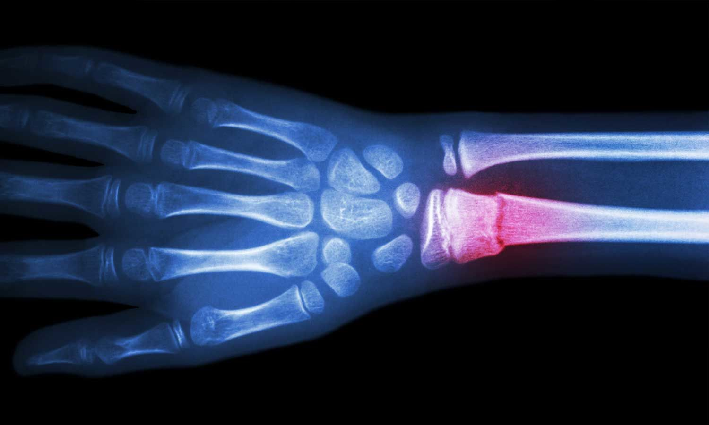 Novel  protein may help broken bones heal faster in diabetics