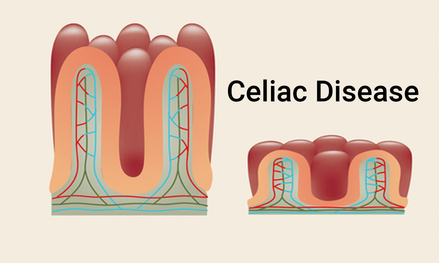 Inflammatory bowel disease and celiac disease linked, confirms study