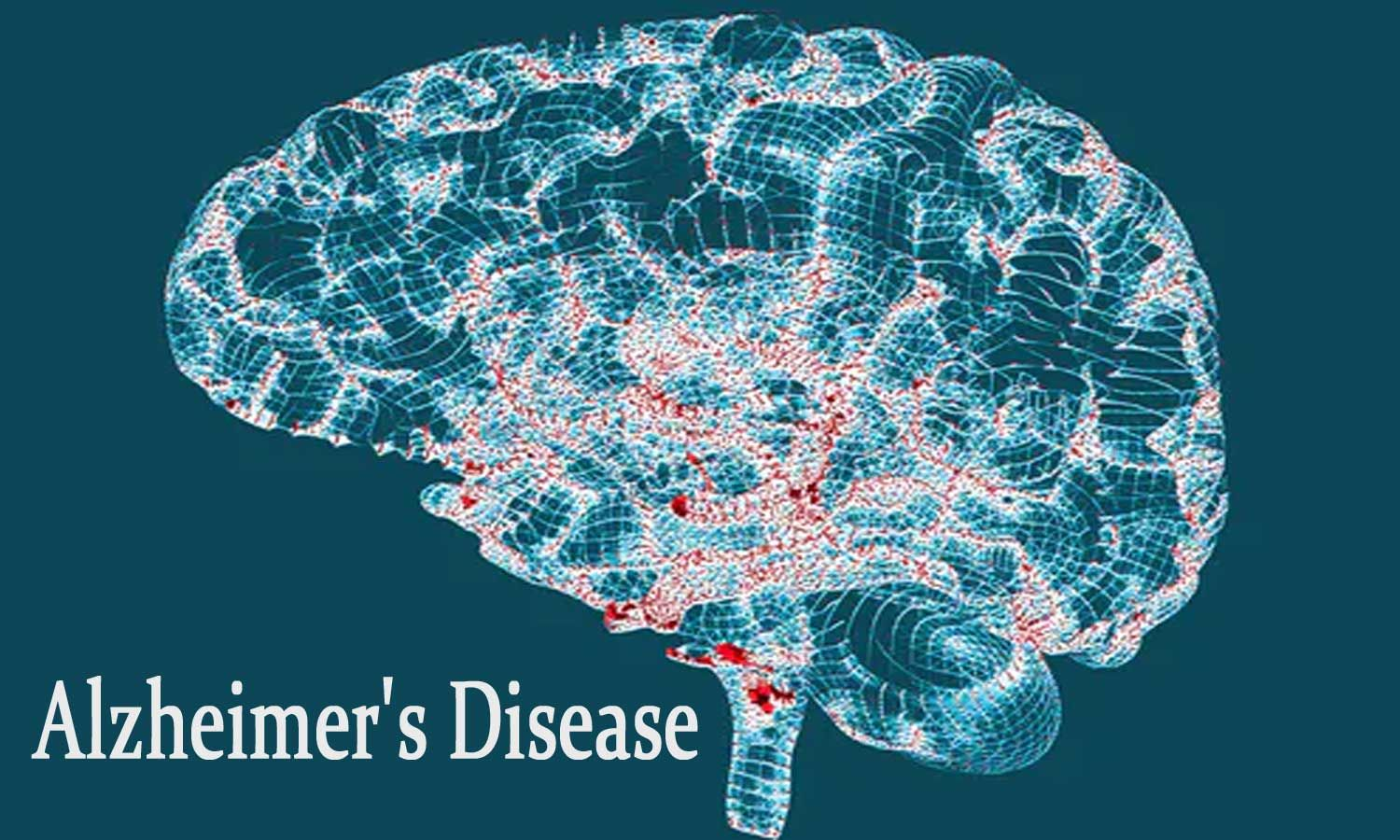 Researchers develop less invasive, cost-effective blood test to detect deposits of Alzheimer proteins in brain