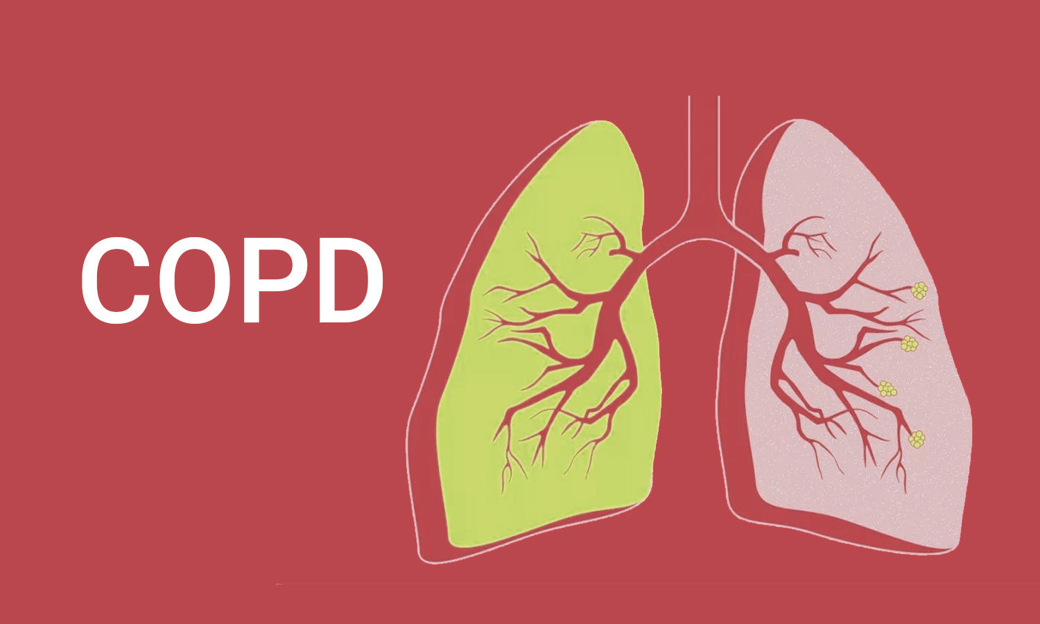 Spirometry bests CT lung in diagnosing COPD,finds study