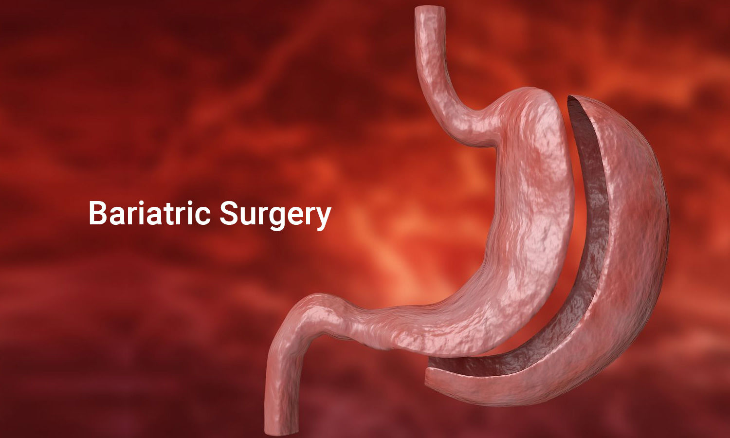 Anti-obesity drugs may help maintain weight loss after bariatric surgery