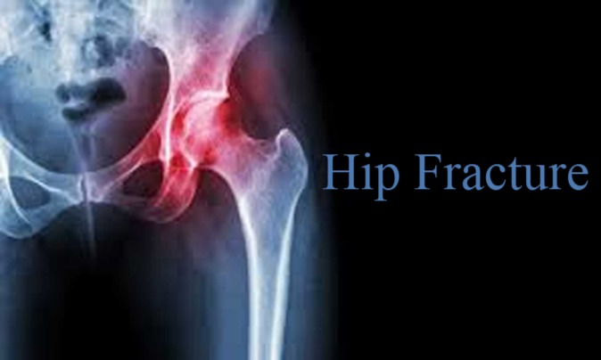 Hip fracture linked to high
