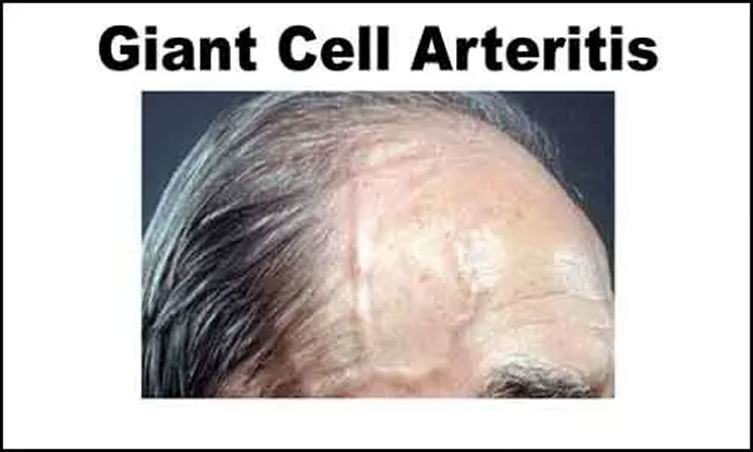 Diagnosis and treatment of giant cell arteritis: BSR guidelines