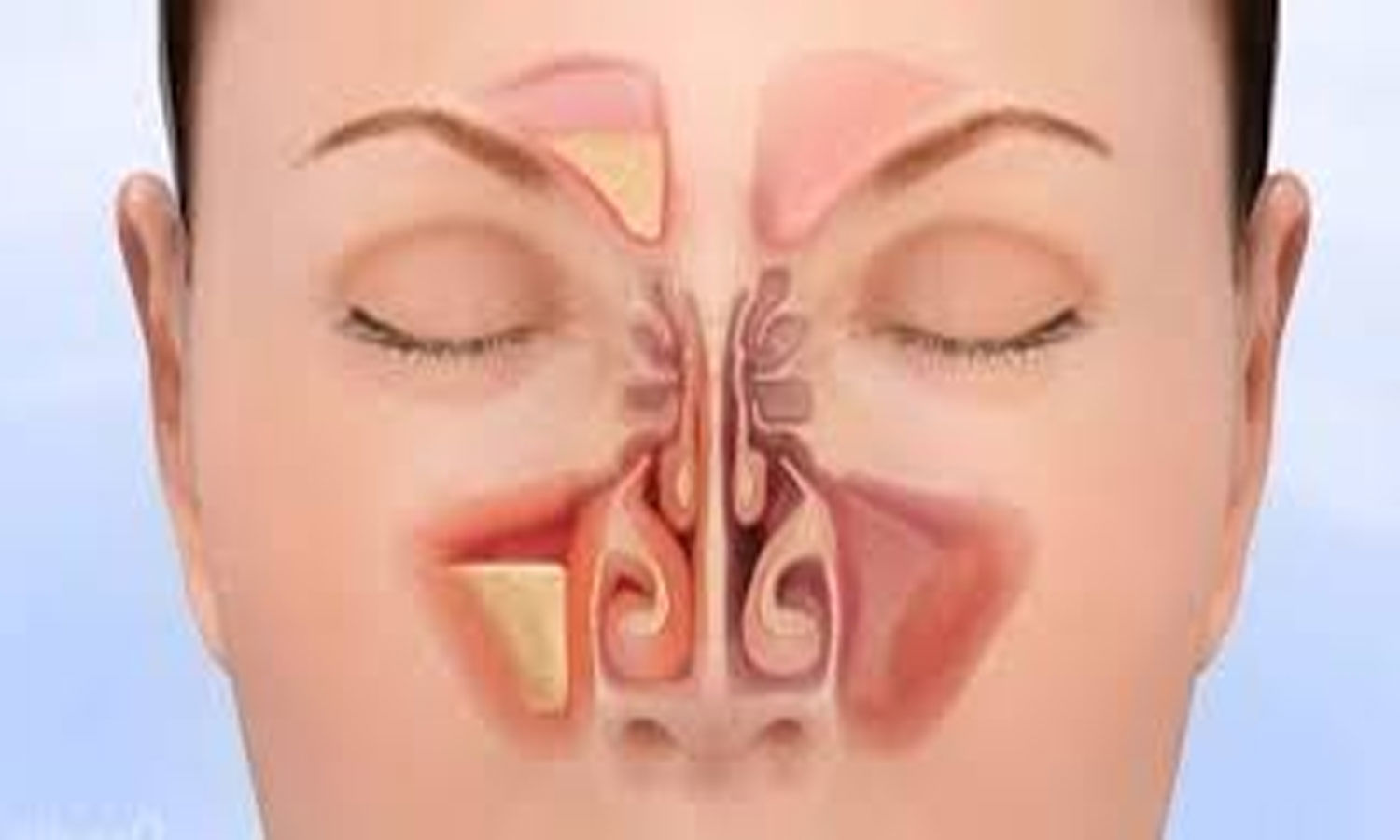 Experts list evidence-based recommendations for managing acute rhinosinusitis and nasal fractures