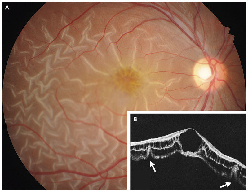 Rare case of X-Linked Retinoschisis presents as retinal detachment