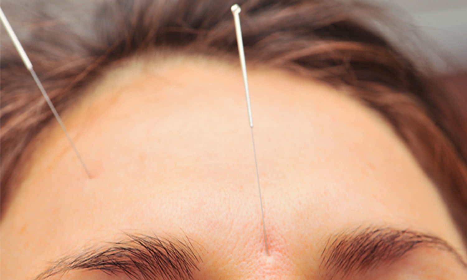 Acupuncture can reduce migraine headaches