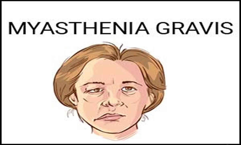 Zilucoplan found effective in generalized myasthenia gravis in JAMA study