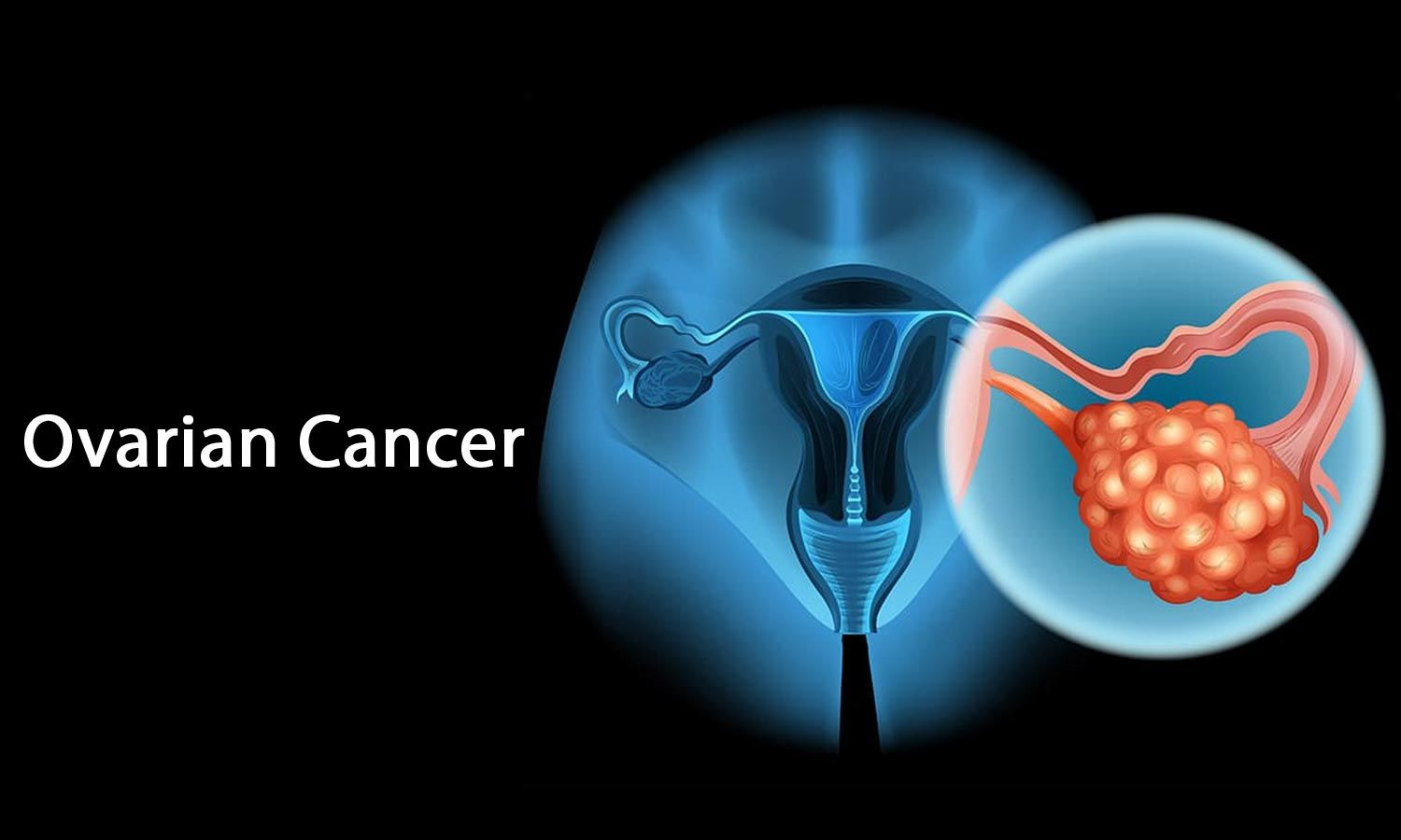 New Treatment Options For Young Women Diagnosed With Rare Form Of Ovarian Cancer