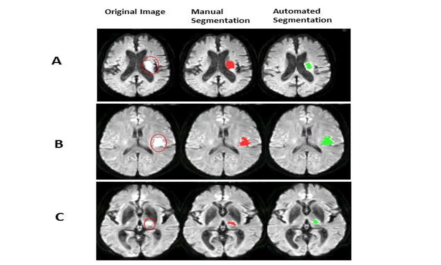 Artificial intelligence may help in faster detection of ischemic stroke