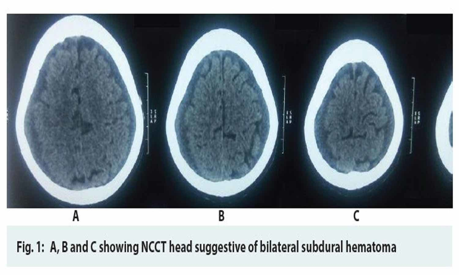 Spontaneous Bilateral Subdural Hematoma in case of Falciparum Malaria
