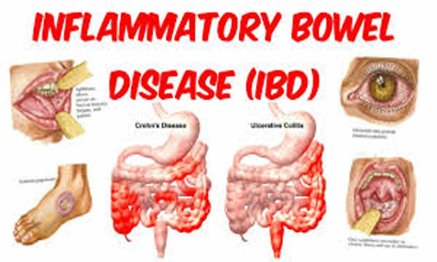 Inflammatory bowel disease linked to doubling in dementia risk