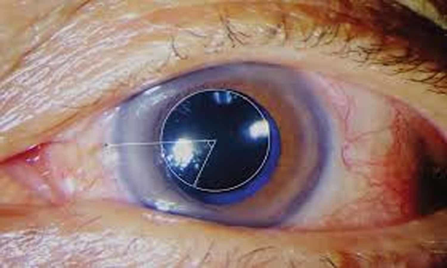 New eye drops may prevent vision loss after retinal vein occlusion