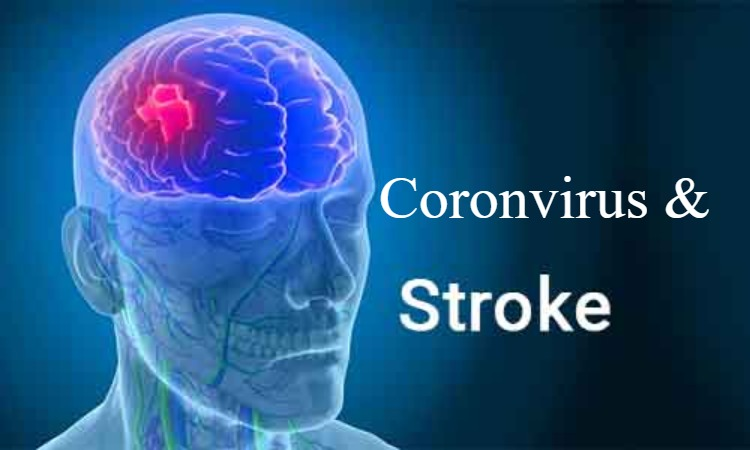 Case Study Links Acute Ischemic Stroke with COVID-19 infection