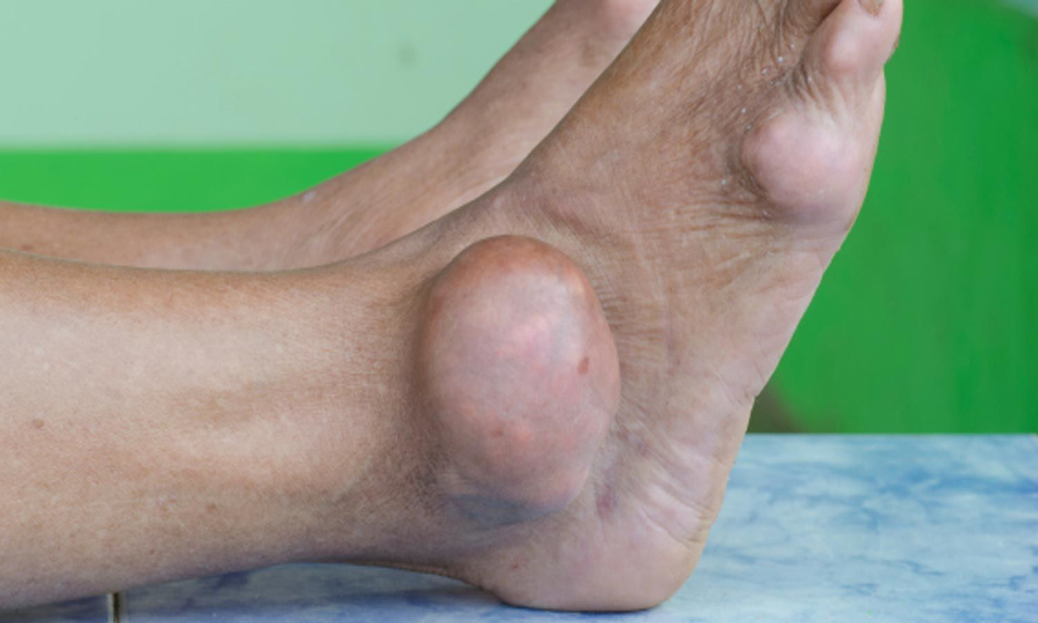 New 2020 Gout management guidelines by ACR