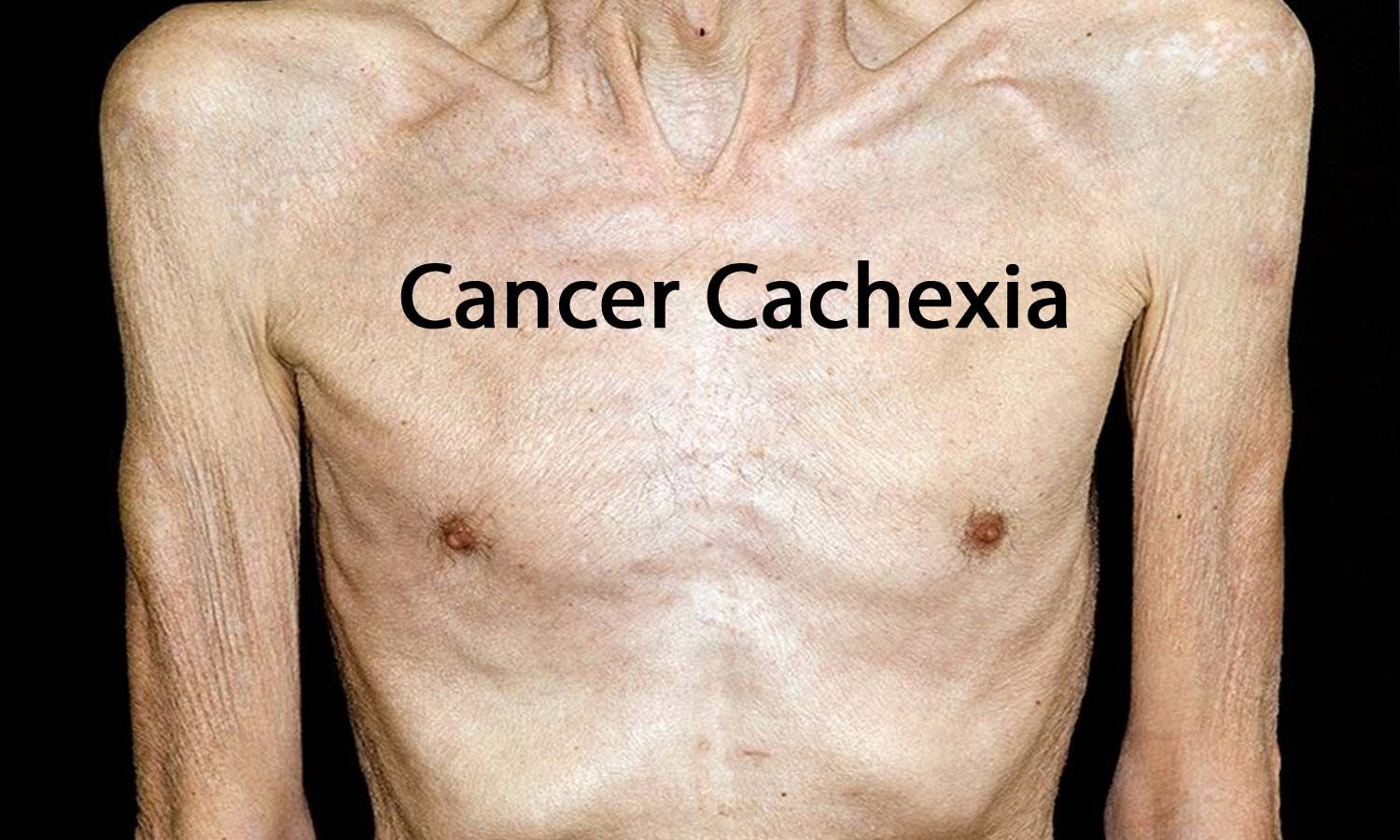 Management of Cancer Cachexia: ASCO Guideline