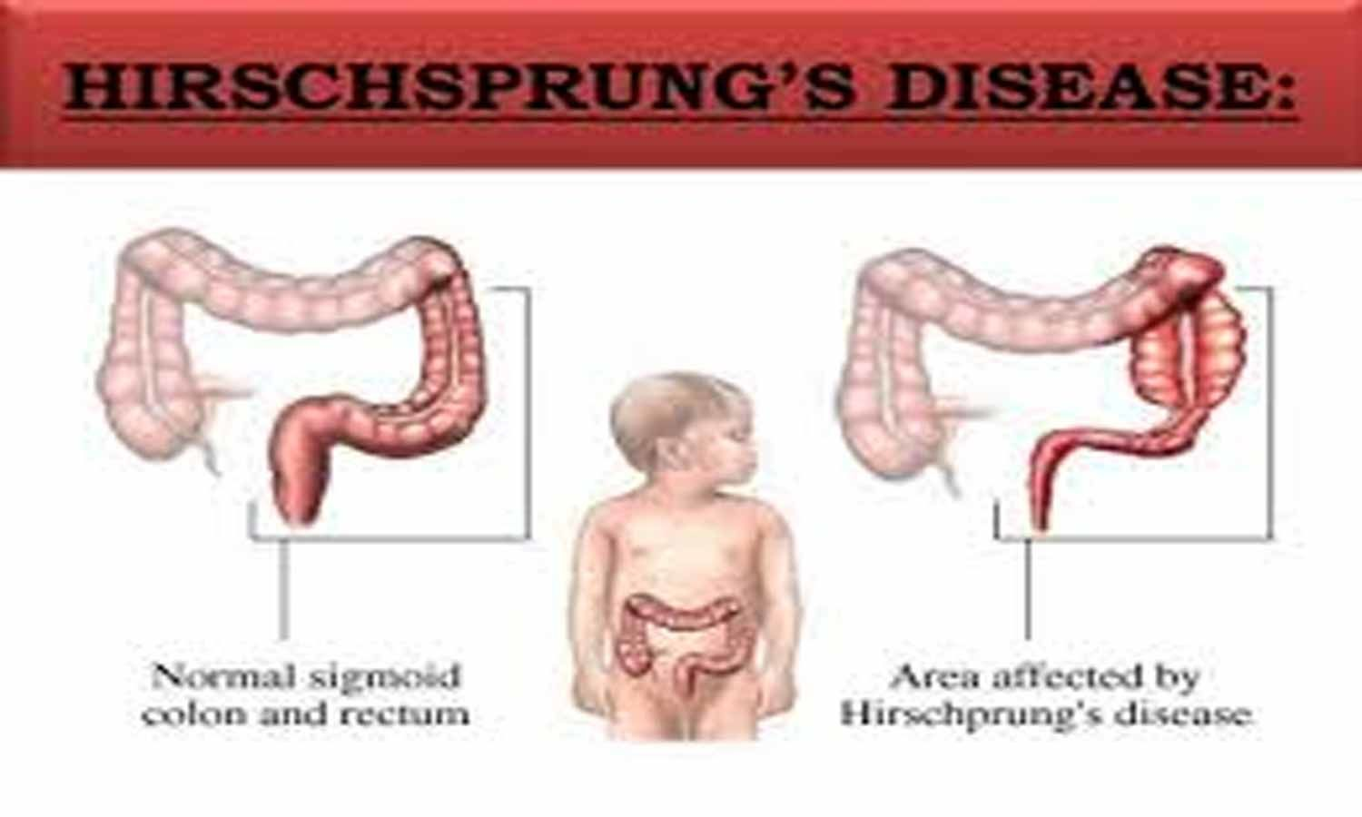 Preclinical study offers hope for patients of Hirschsprung