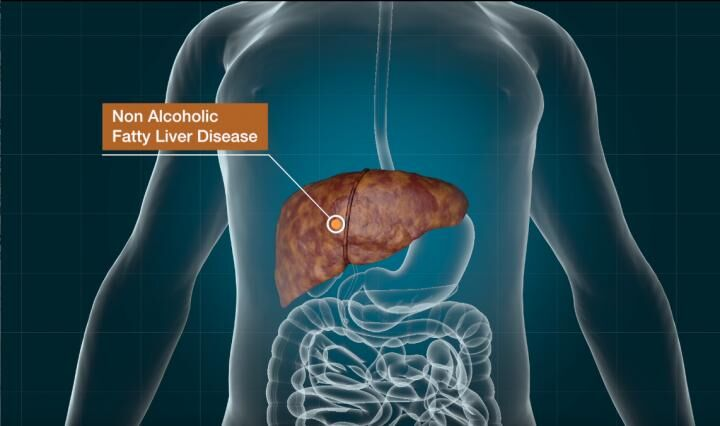 New non-invasive imaging method may monitor progression of NAFLD