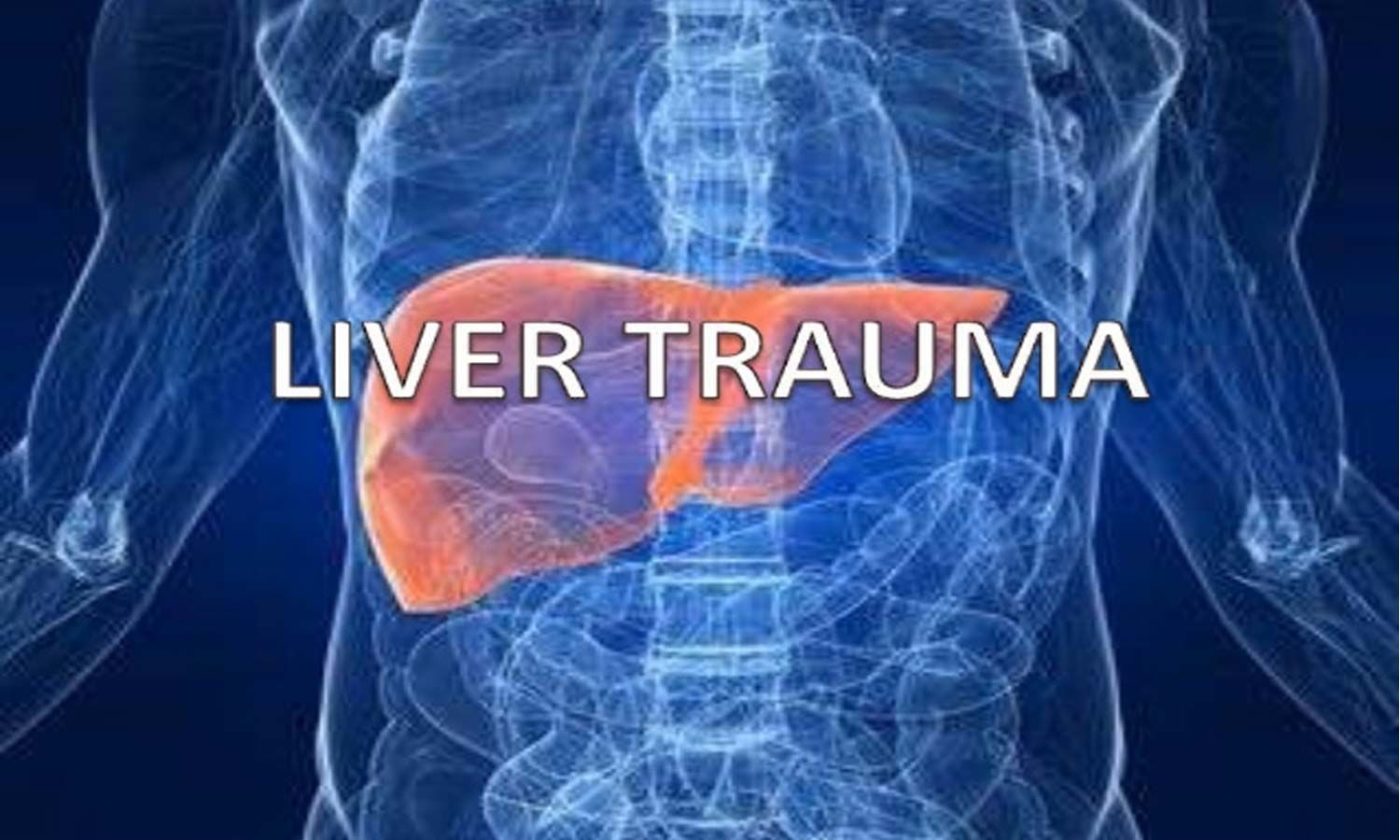 Operative and Nonoperative management of Liver Trauma: WSES Guidelines