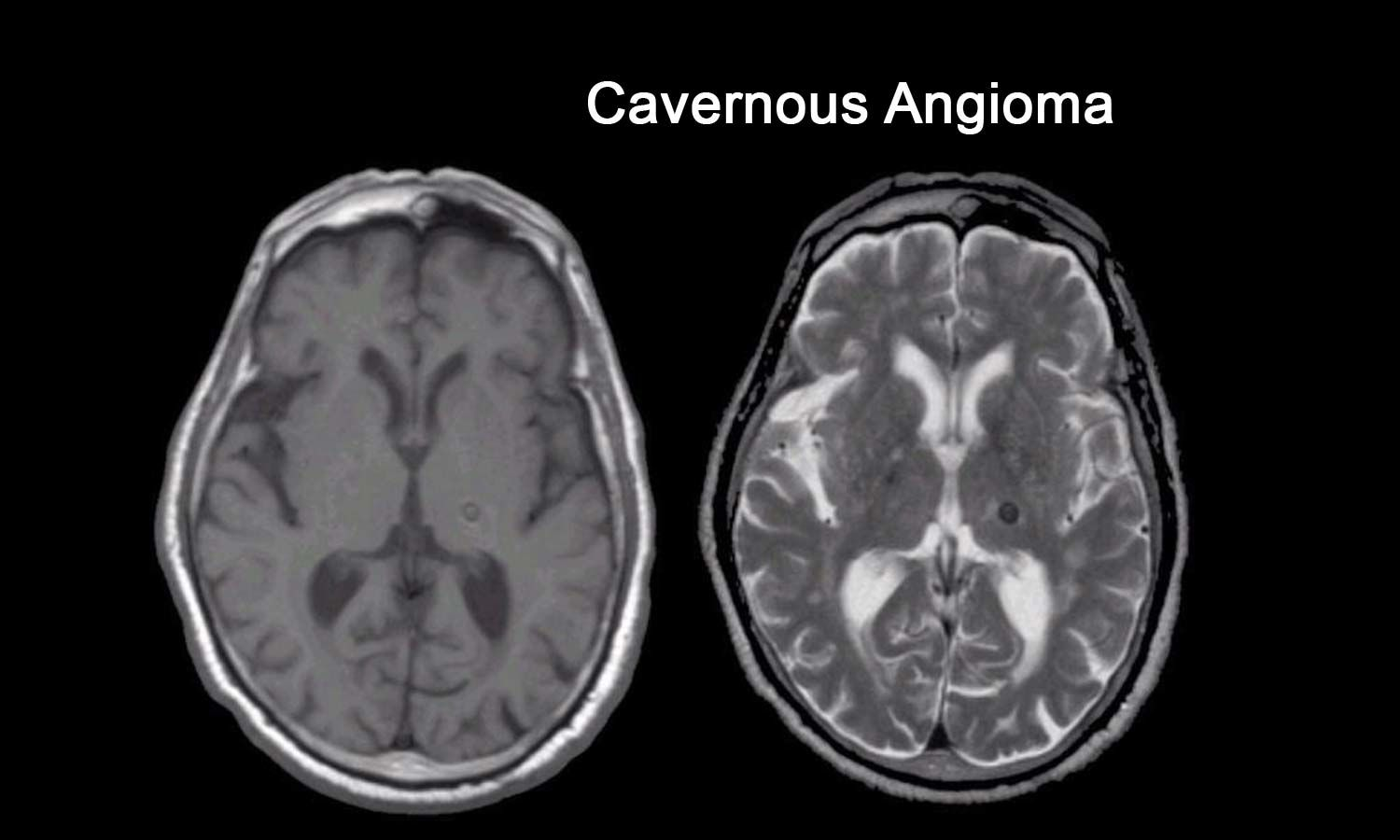 Study links cavernous angioma with disordered gut microbiome