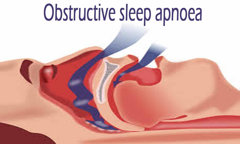Mandibular advancement device improves daytime sleepiness in sleep apnea