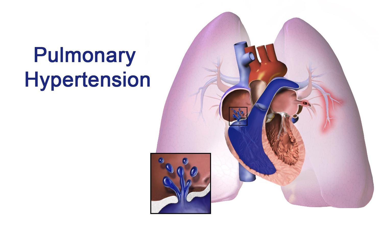 Pulmonaalihypertensio