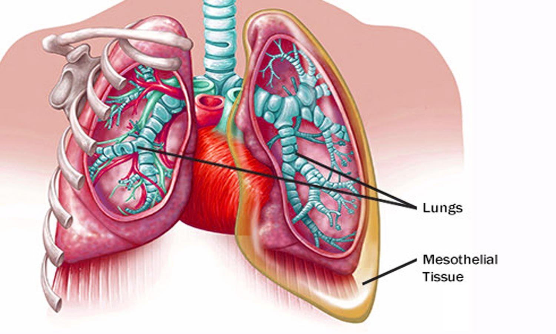 Nivolumab effective treatment for malignant mesothelioma - Medical Dialogues