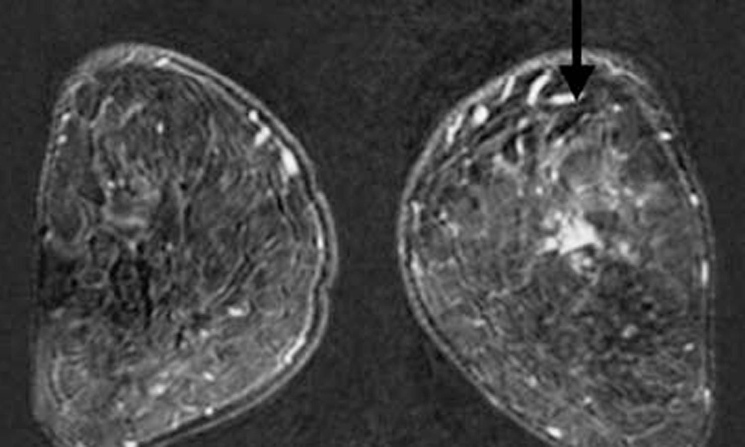 Pre-operative MRI may identify additional breast cancer sites for better management