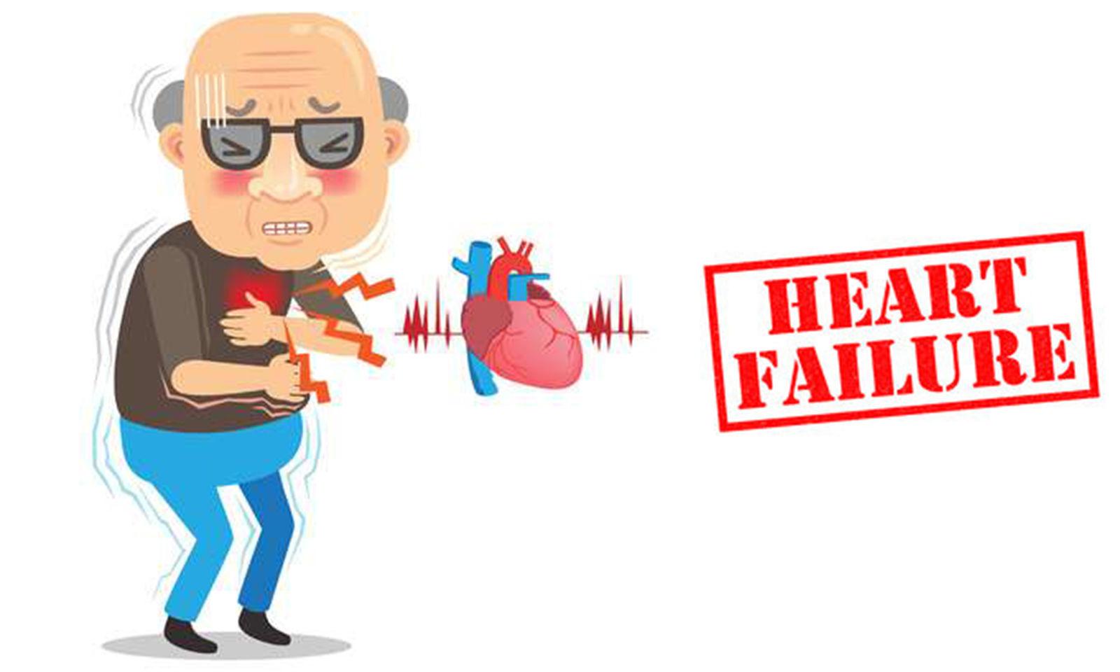 Existing heart failure drug may treat potential COVID-19 long-hauler symptom - Medical Dialogues