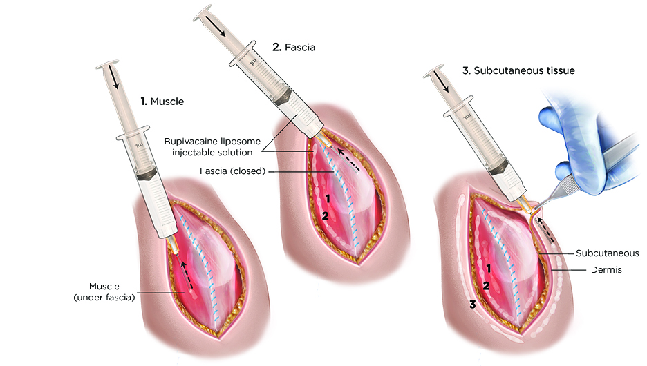 Liposomal Bupivacaine may not reduce pain after abdominal wall reconstruction surgery
