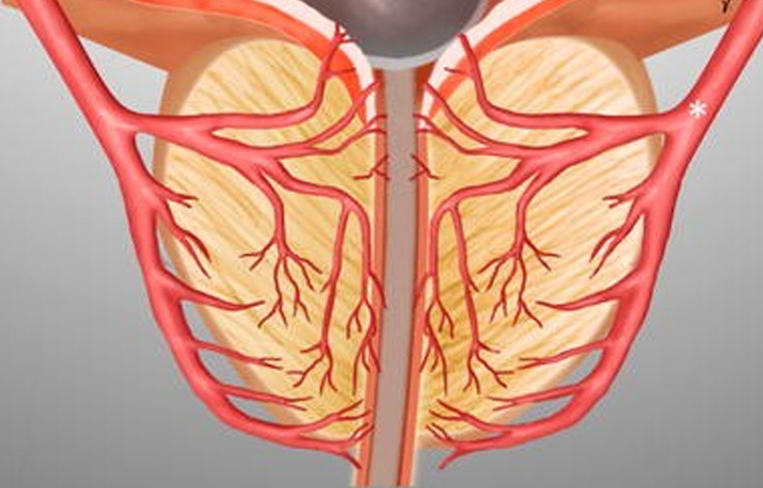 Prostatic artery embolization may do away with catheterization need in AUR  patients: Study