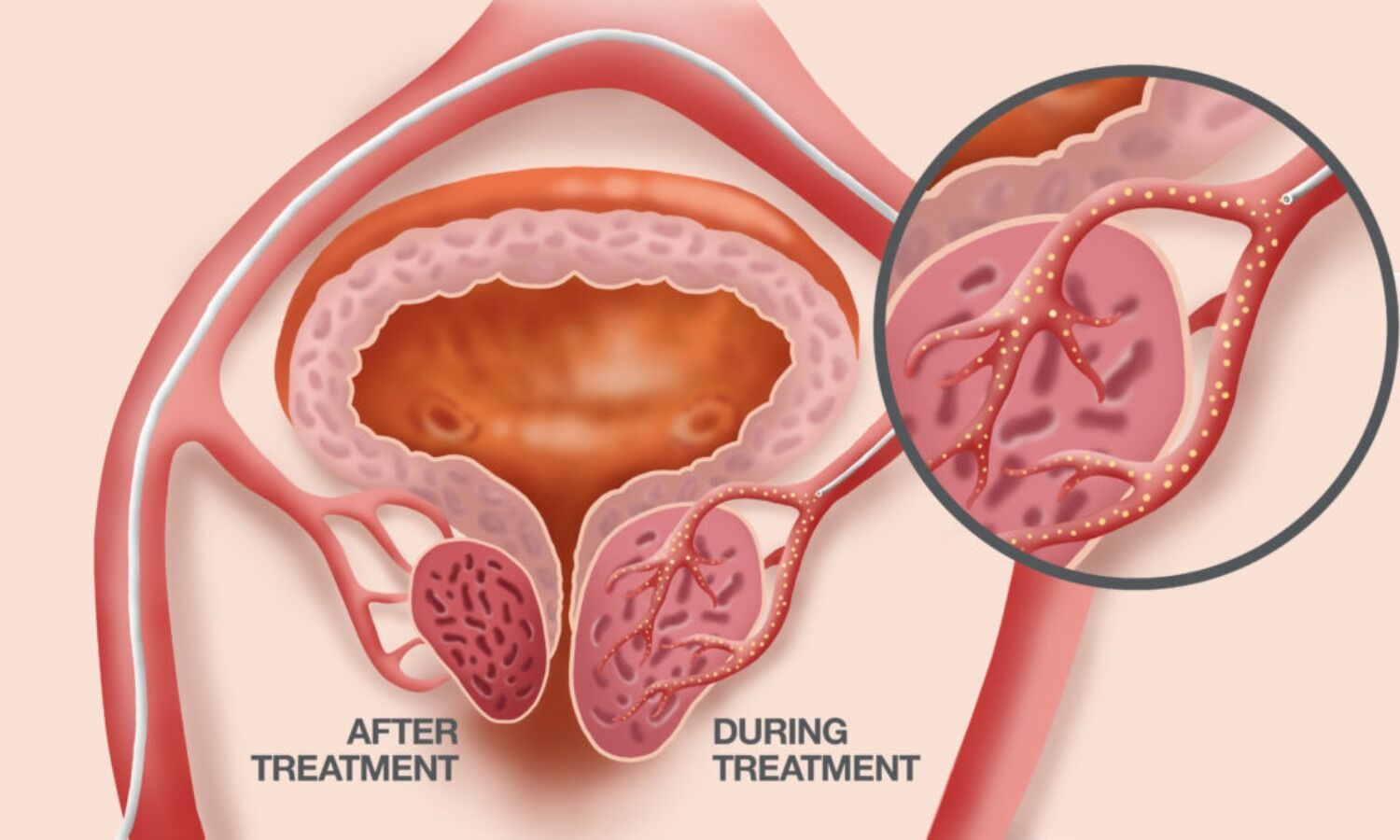 Prostatic Artery Embolization beneficial for treating LUTS in