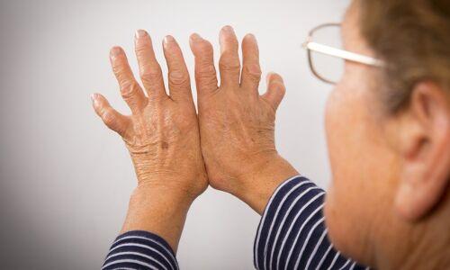 Short-term Prednisone therapy reduces disease severity in newly - 500x300 159347 rheumatoidarthritisra1215891391