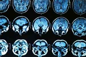 New mechanism behind Alzheimer's onset identified